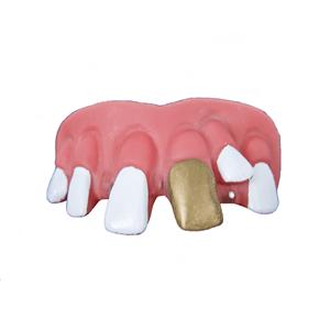 Dentadura Dente de Ouro