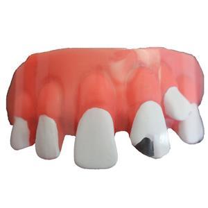 Dentadura Dente Podre